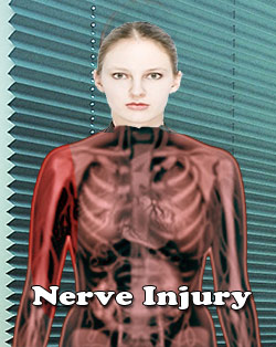 Neurotmesis : Nerve Injury
